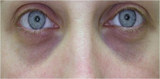 ... eye. The skin around the eye darkens causing dark under eye circles