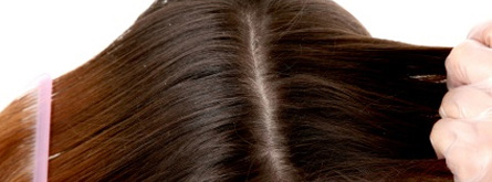 Dry Flaky Scalp Causes, Treatment and Remedies | Strong Hair