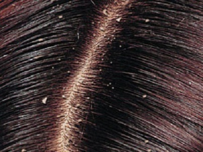 Some Effectual Remedies for Dandruff