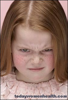 النمش أو Freckles