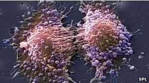 علاج جديد لسرطان البروستاتا بأعراض جانبية اقل
