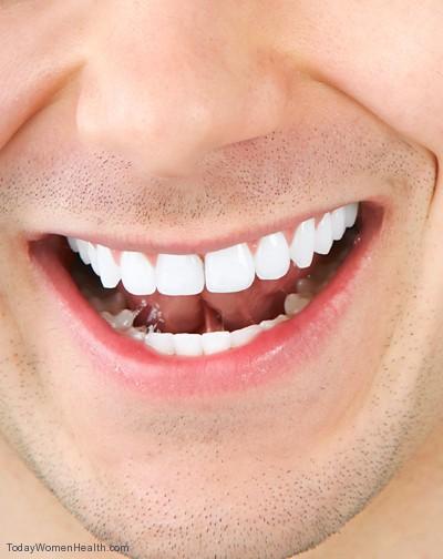 وسائل تبيض الأسنان دون اى ضرر للأسنان