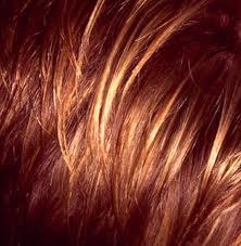 قشر الشعر و العوامل المسببة له