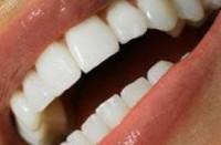 أفضل طريقة لتبييض الأسنان