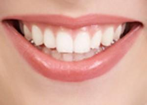 ما هى التقنيات الحديثة لتبييض الاسنان
