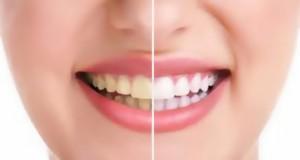 أكثر 10 اسباب تسبب اصفرار الاسنان