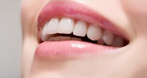 """محاذير يجب تجنبها قبل عملية """"تبييض الأسنان"""""""