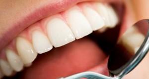 5 خطوات فعالة للتخلص من اصفرار الاسنان