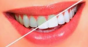 خلطة تبييض الاسنان في يوم