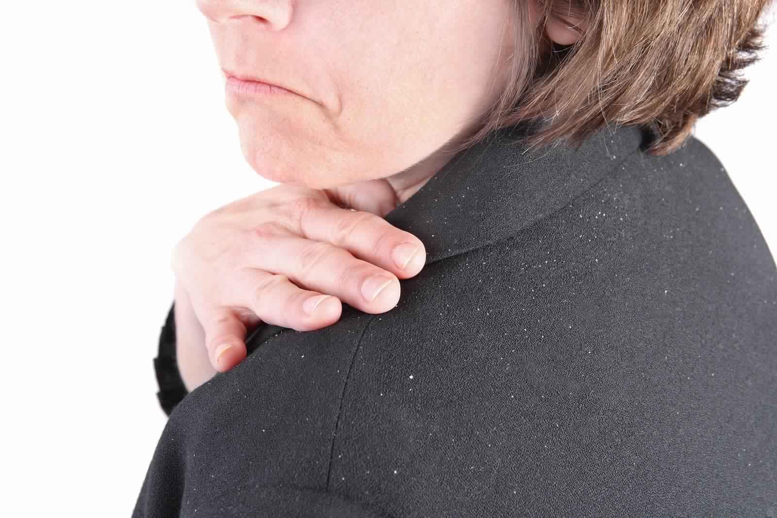 وصفات فعالة لتخلص من قشرة الشعر نهائياً