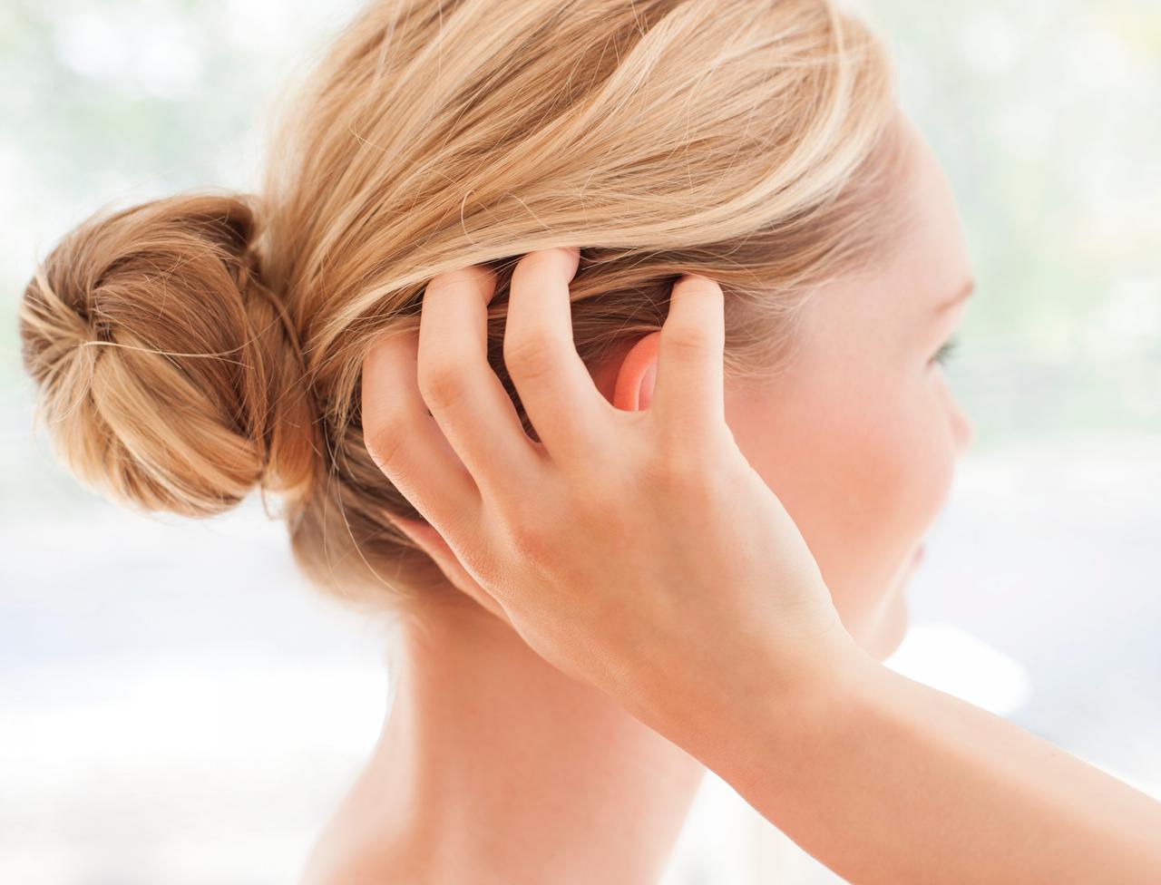 وصفات فعالة للقضاء على قشرة الشعر