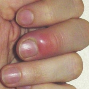 How To Treat Fingernail Infection