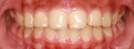 Preventing and Treating Gingivitis