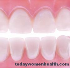 تبيض الأسنان طبيعيا