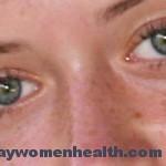 أسباب حدوث الكلف وكيف يمكن علاجة