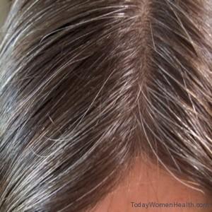 معالجة الشعر الأبيض
