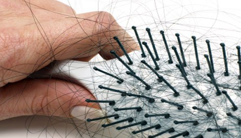 ما هى اسباب تساقط الشعر الطبية ؟